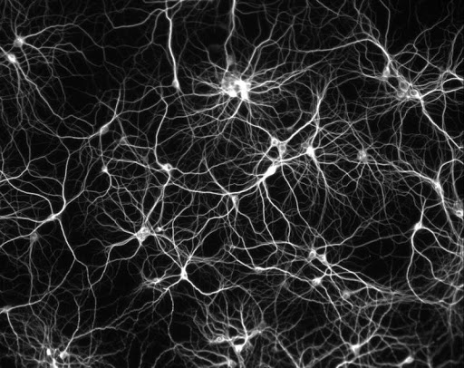 Dissociated hippocampal neurons
