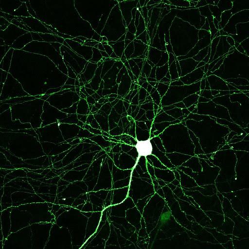 Hippocampal neuron expressing mGFP ©Paul De Koninck