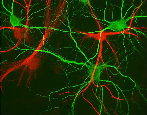 Hippocampal neurons in green and glial cells in red ©Paul De Koninck