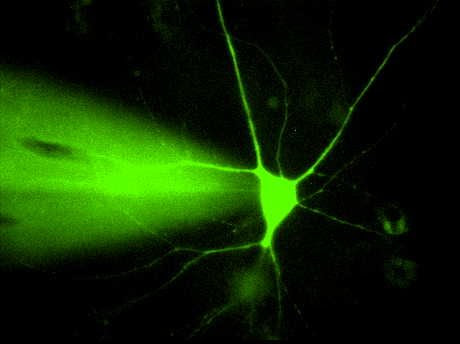 Patch-clamp of hippocampal neuron with lucifer yellow fluorescent dye  © Paul De Koninck