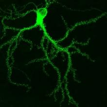 GFP-tagged protein in a hippocampal neuron. © Paul De Koninck